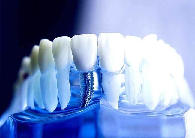Имплантация зубов в современных реалиях способна на многое